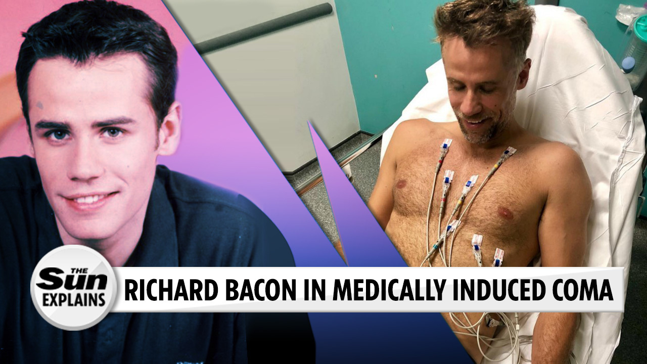 What is a medically induced coma and why was Richard Bacon