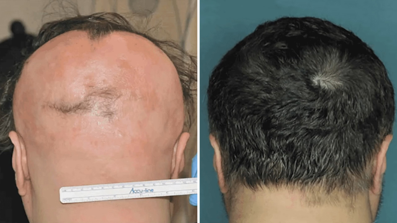 Drug Stimulates Regrowth Of A Full Head Of Hair In Just 4 Months