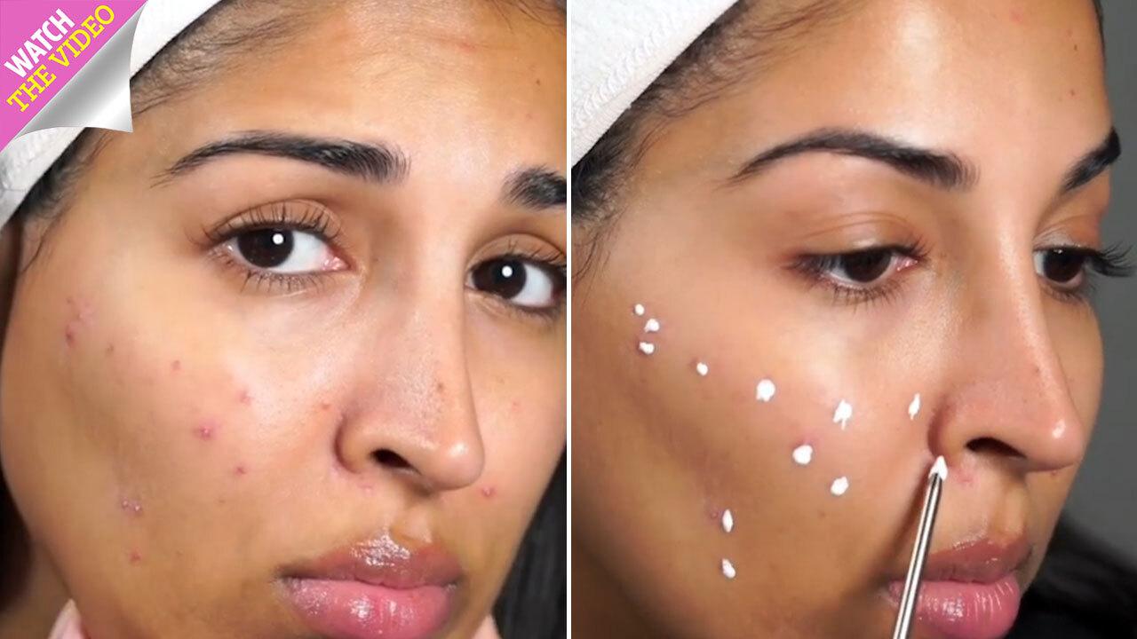 Acne sufferers claim anti-dandruff shampoo cleared up their