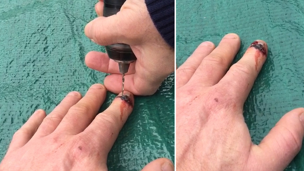 Stomach-churning moment man drills through his finger nail to ...
