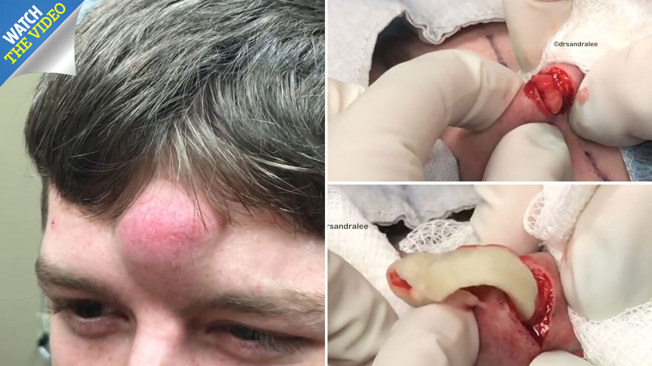 Watch Dr Pimple Popper slay giant 'unicorn cyst' on man's head in